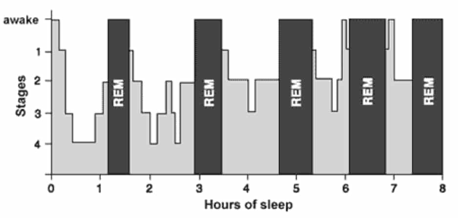 Hypnogram - a graphic depiction of a night's sleep cycle